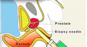 Biopsies de prostate